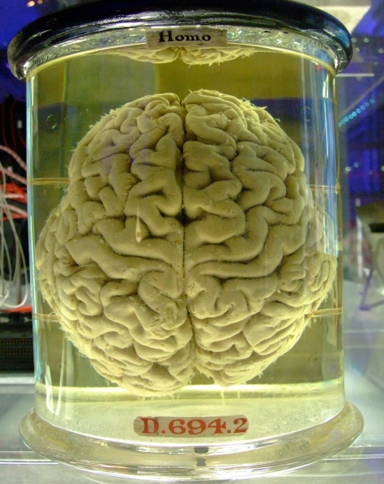 Your Brain Can Now Be Hacked For Under $300
