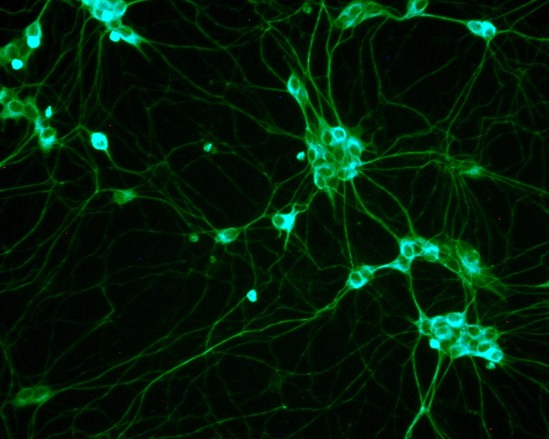 Scientists Grow Human Brain From Stem Cells