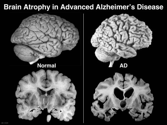three fundamental issues about Alzheimer's
