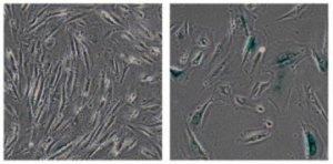 A study tying the aging process to the deterioration of tightly packaged bundles of cellular DNA could lead to methods of preventing and treating age-related diseases such as cancer, diabetes and Alzheimer's disease, experts say.